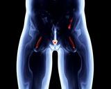 PSA-Bestimmung zur Früherkennung des Prostata-Karzinoms beim Mann