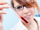 Hormonprofil-Analyse